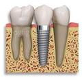 Implantes Dentales Financiados Hasta 4 Meses